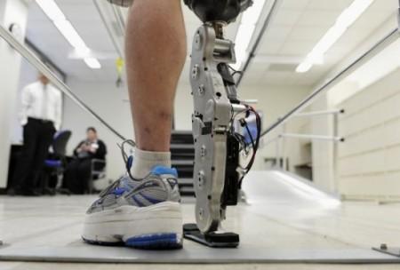 Bionická protéza