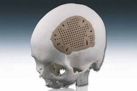 Polymerová lebeční destička